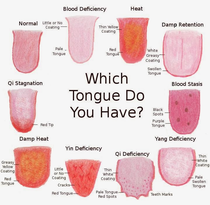 What your tongue color and shape says about your health1