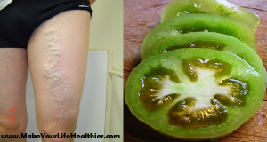 How to Cure Varicose Veins with the Help of Tomato