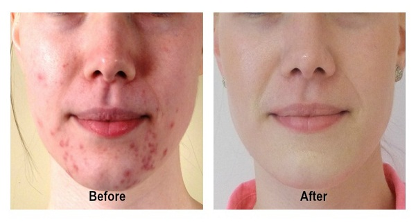 Make Acne And Pimples Disappear Forever In 14 Days