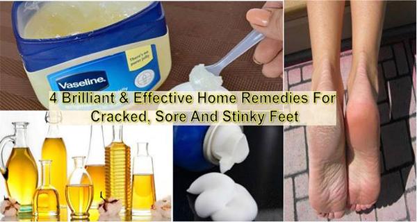 4-Αποτελεσματική-Home-θεραπείες-για-πληγή-κροτίδα-και-Stinky-Πόδια