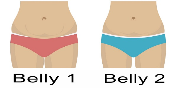What the shape of your belly says about your ability to lose weight