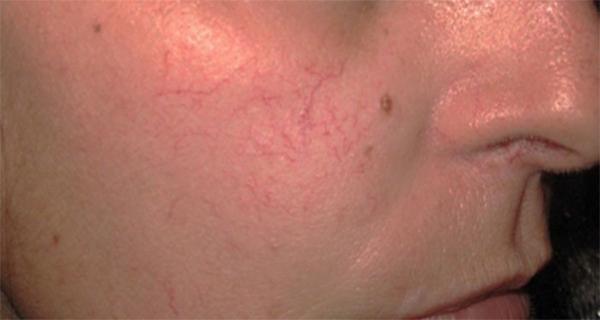 Can You Heal Broken Capillaries Naturally