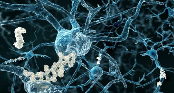 This New Breakthrough Alzheimers Treatment Fully Restores Memory Function