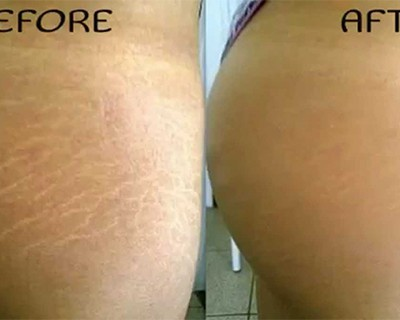 How to Remove Stretch Marks Naturally Within 6 Weeks