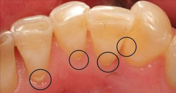 Remove Tartar, Clean Plaque, and Destroy the Bacteria in the Mouth with Just One Ingredient