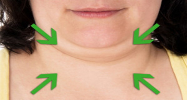 There is no Need of Surgery! Get Rid of Double Chin Naturally By Following These 6 Valuable Tips