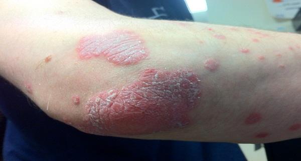 Αυτό-Συνταγή-Θεραπεύει-All-Δέρμα-Ασθένειες-Ακόμα-Ψωρίαση