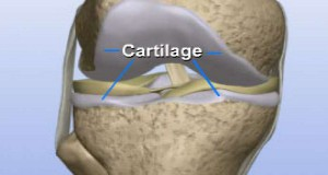 Naturally Restore Knee Cartilages