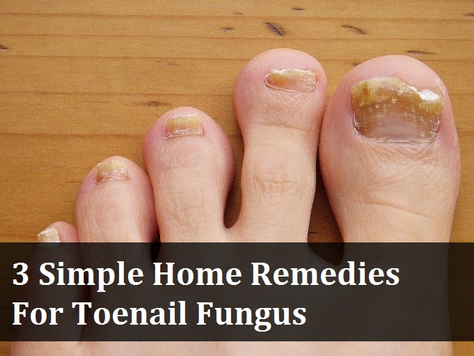 3 Simple Home Remedies for Toenail Fungus » Make Your Life Healthier |