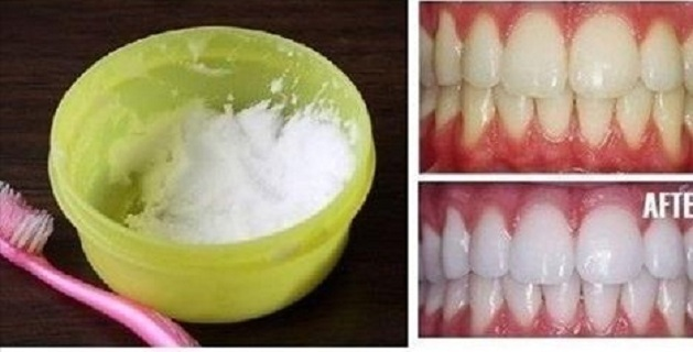 Diy Natural Teeth Whitening In Minutes At Home