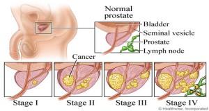 Symptoms of Cancer That Men Often Ignore