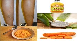 Cure Your Varicose Veins With This Powerful Mixture: Apple Cider, Carrot And Aloe Vera (RECIPE)