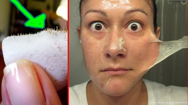 This Is How You Can Make Blackhead Strips On Your Own