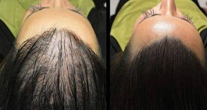 Magic Recipe For Fastest Hair Growth Naturally, All Are Surprised By The Results…