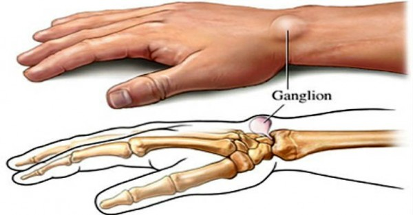 Natural Remedies For Wrist Pain