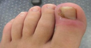 Here Is How You Can Pull Out The Ingrown Toenail Without Operation!