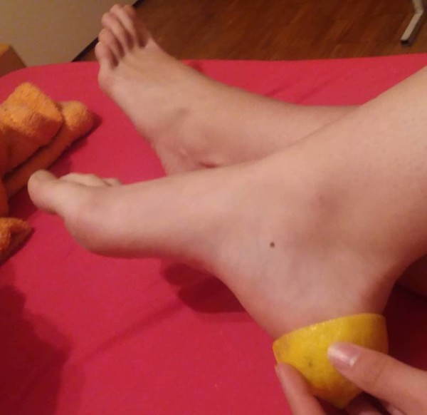 Recipes For Cracked Heels