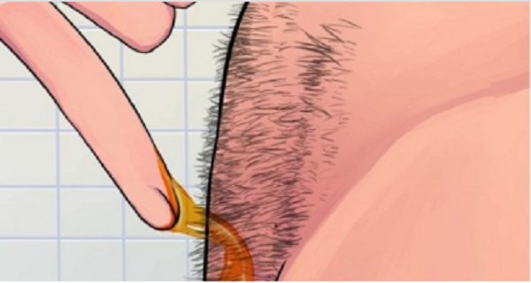 IMPRESSIVE-How-To-Naturally-Remove-Body-Hair-Permanently-No-Waxing-Or-Shaving-