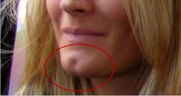 If You Have This Hole On Your Chin You Are Really Special! Here's What It Says About You…
