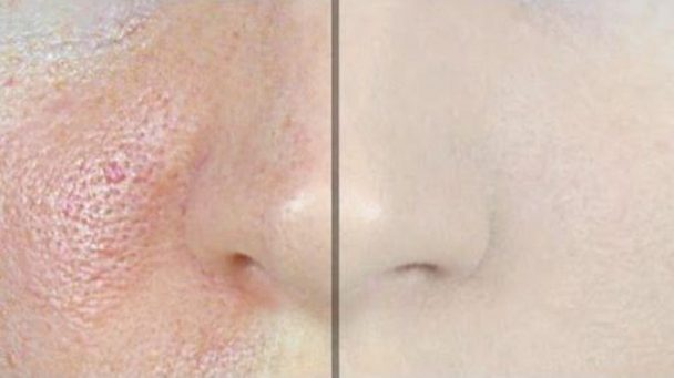 How-to-Make-Pores-Disappear-with-Only-1-Ingredient