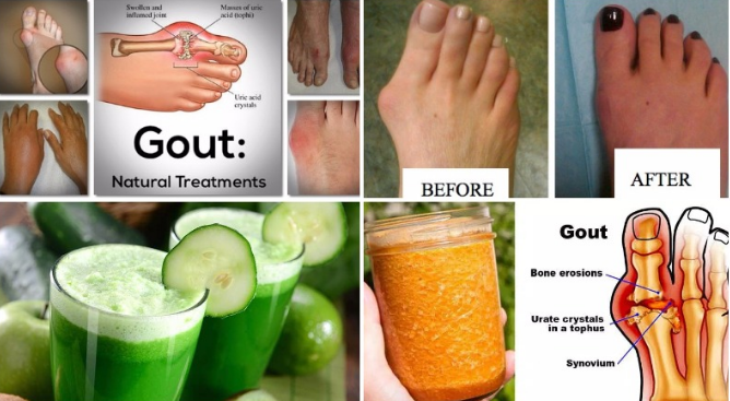 doctors-have-confirmed-say-goodbye-to-arthritis-with-the-help-of-this-ultimate-remedy