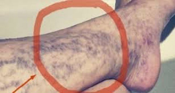 everyone-has-the-cure-for-varicose-veins-at-home-but-many-people-do-not-know-about-it