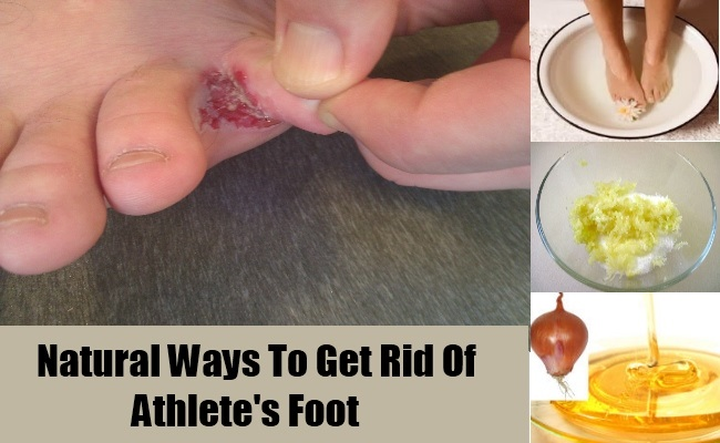 natural-way-to-get-rid-of-athlete-foot