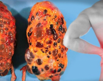 8 Bad Habits That Can Damage Your Kidneys And You Do Them Every Day! You Should Start Avoiding Them Immediately!