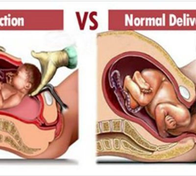 Facts About Normal Vs C-Section Delivery, All Women Must Know