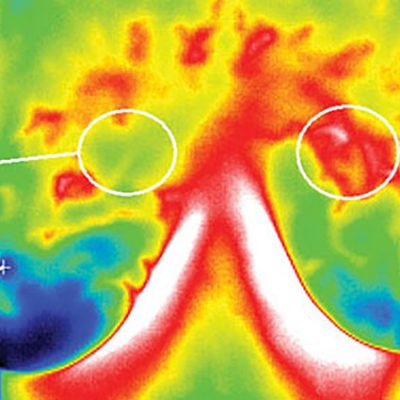 Thermograms: Safer, More Accurate than Mammograms