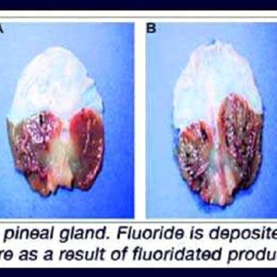 Here's How to Get Fluoride Out of Your System