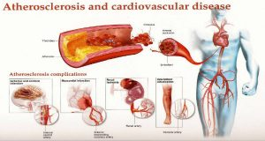 STOP USING DRUGS: THE MOST POWERFUL MIX TO PURIFY CLOGGED ARTERIES AND IMPROVE BLOOD CIRCULATION!