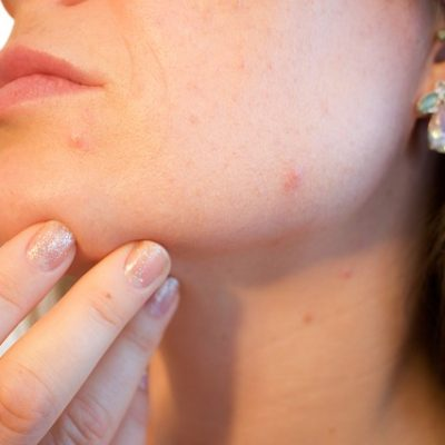 10 Effective Tips to Get Rid of Sunspots