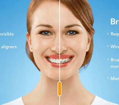 Importance of Having Orthodontic Treatment