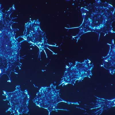 The Most Common Types of Cancer
