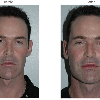 7 Top Benefits of Rhinoplasty