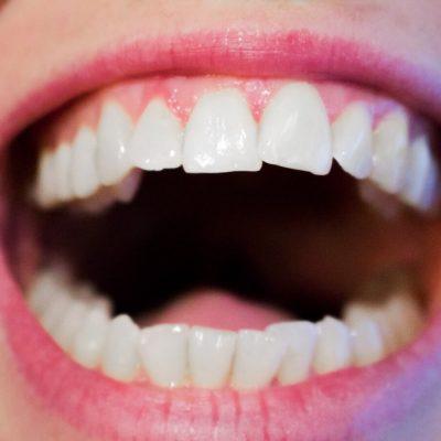Advanced Dental Care at Delray Medical & Dental
