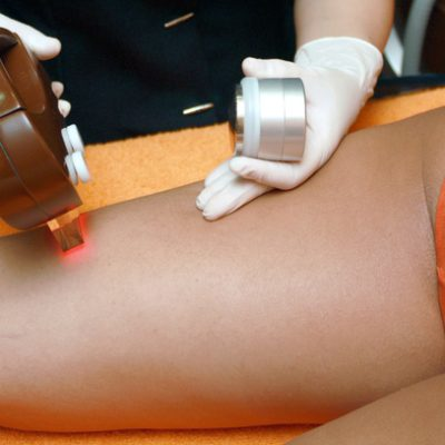 How Is Laser Hair Removal Done?