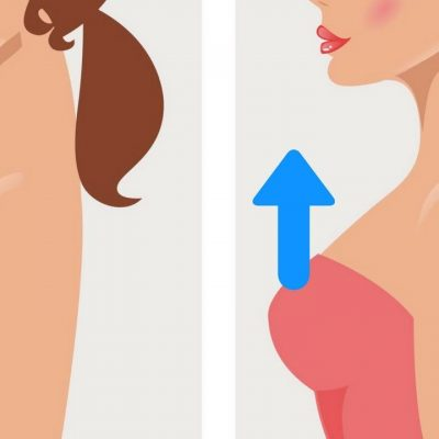 Is Breast Lift a Safe Procedure?