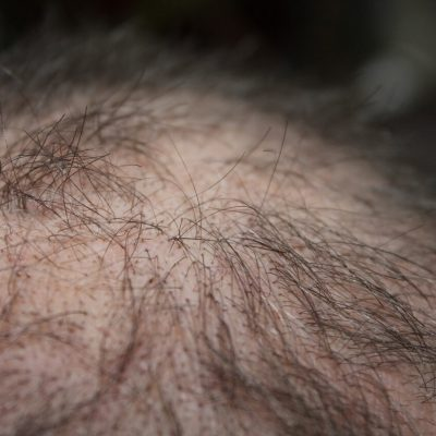 What to Expect when Getting Follicular Unit Extraction (FUE)