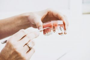 Important Questions for Your General Dentist